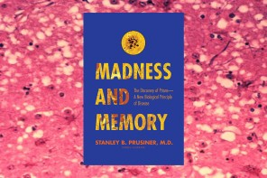 Method in Madness: Discovering Prions